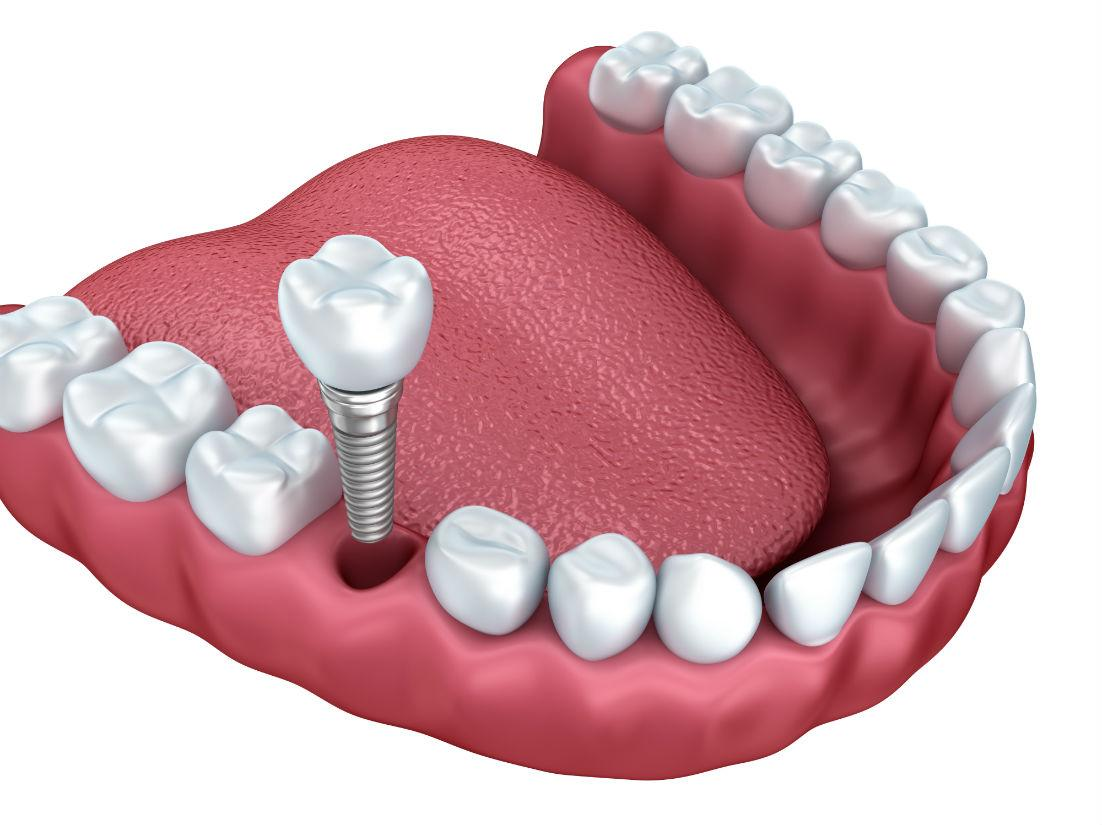 Dental Implants Fremont CA